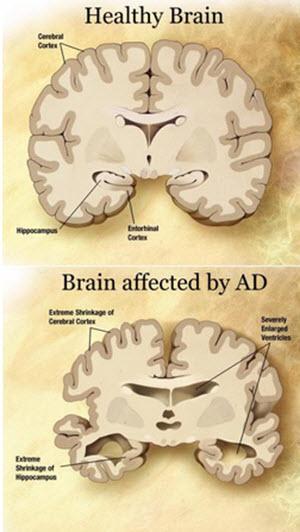 Sleeping Pills linked to Alzheimer's Disease. Other Sleep Choices from Ross F. Grumet, SleepAdvocate